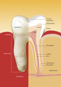 Das Zahnfleisch entzündet sich schleichend und bleibt auch in diesem Zustand lange schmerzfrei.