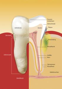 parodontitis_04