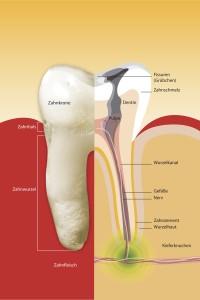 Wurden früher durch eine Wurzelentzündung stark geschädigte Zähne gezogen, werden heute die Bakterien vollständig entfernt, um den Zahn zu erhalten.